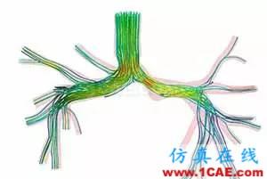 看ANSYS公司如何利用CFD助力心脏病患者手术fluent分析图片1