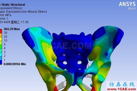 【医学应用】骨科知识和有限元分析ansys分析图片2